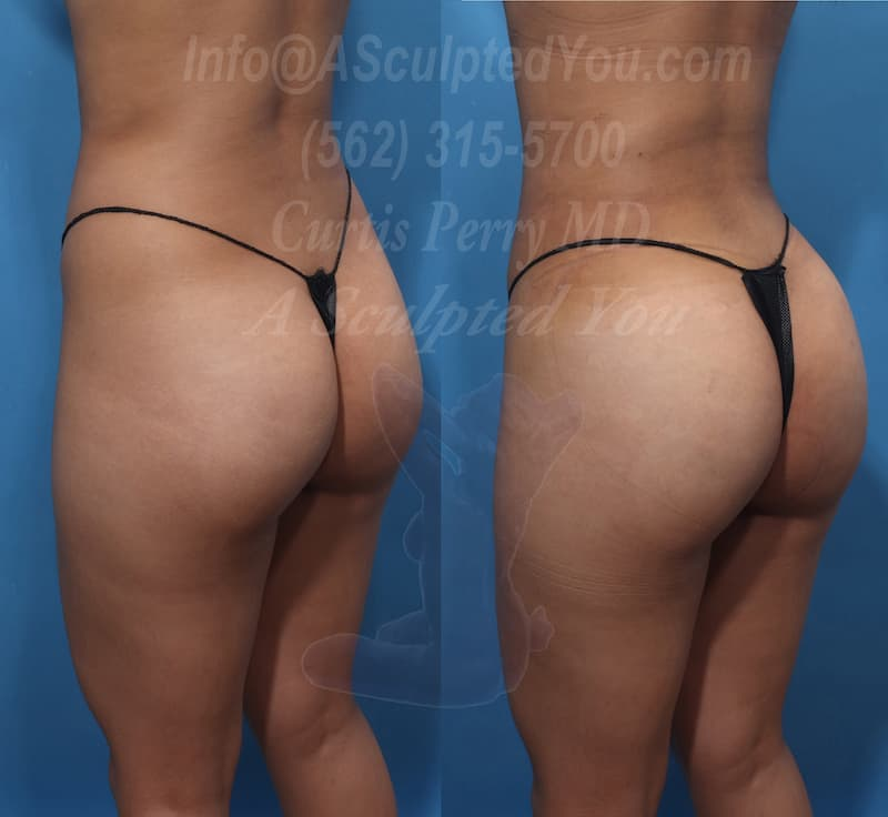 Using Dr Perry?s technique Brazilian Butt Lift, often referred to as BBL, is a safe and effective fat transfer technique to create a more appealing back.