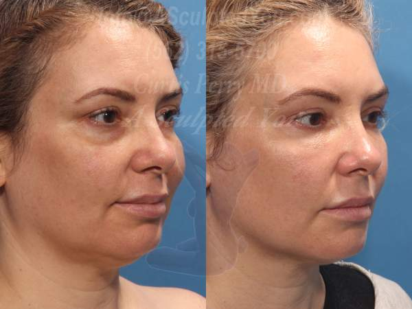 Fat Transfer Face. Brows, cheeks, nasal labial folds, lips, chin and jawline treated