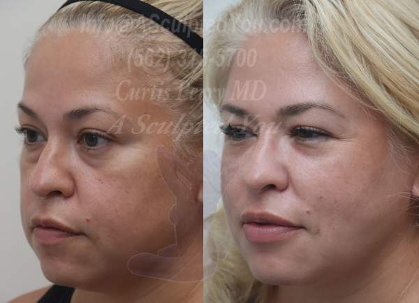 Radio frequency skin tightening combined with liposuction of lower face and neck. Patient also had fat transfer to the brows, cheeks, lips and chin.