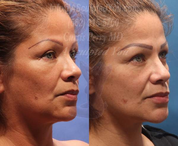 Radio Frequency Skin Tightening of Lower Face and Neck