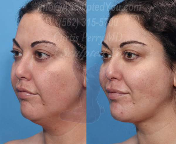 Radio frequency skin tightening combined with liposuction of lower face and neck.